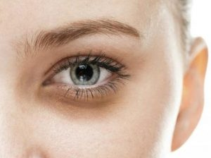 eye bags 3