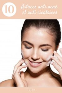 astuces anti acné